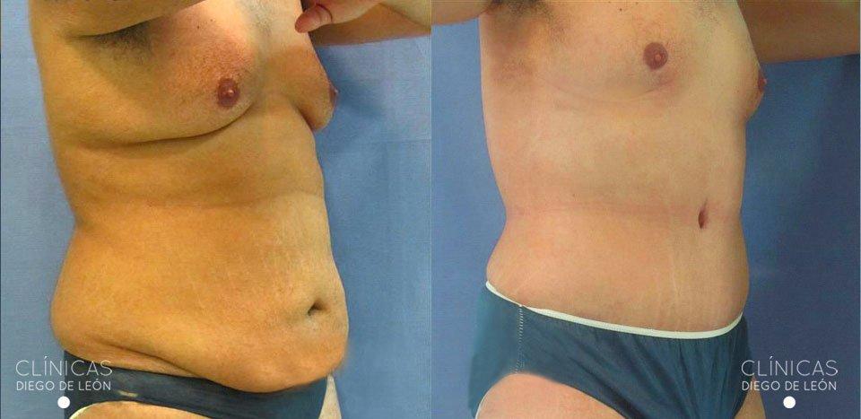 Abdominoplastia en hombres