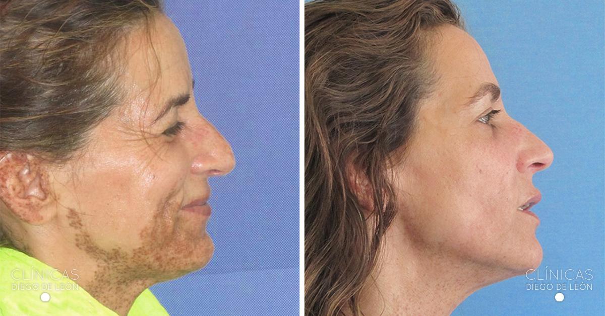 Eliminar manchas cara - Antes y después - Láser Fraxel