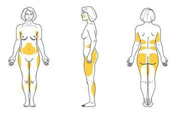Zonas de Liposucción