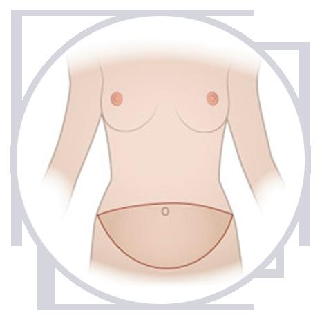 Cómo se hace la abdominoplastia