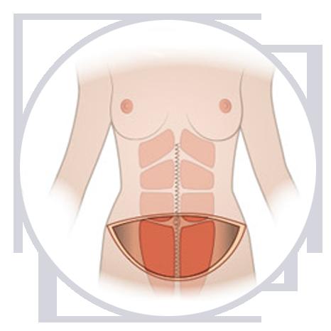 Cómo se hace la abdominoplastia fase
