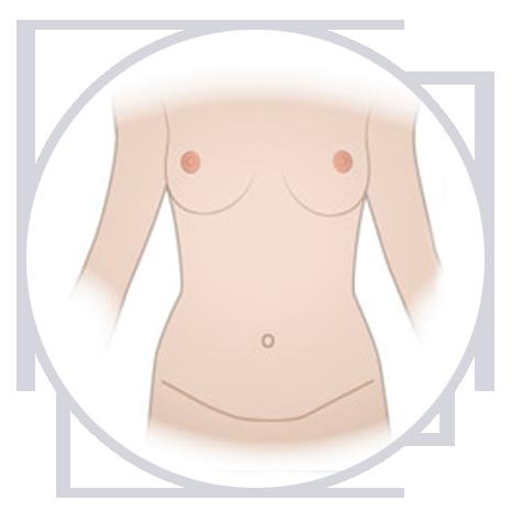Cómo se hace la abdominoplastia fases