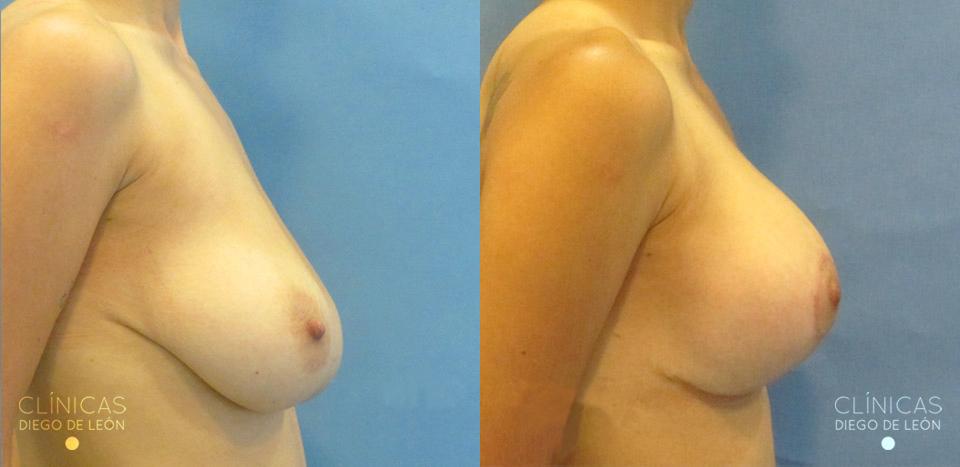 Mastopexia con implantes resultados | Clínicas Diego de León