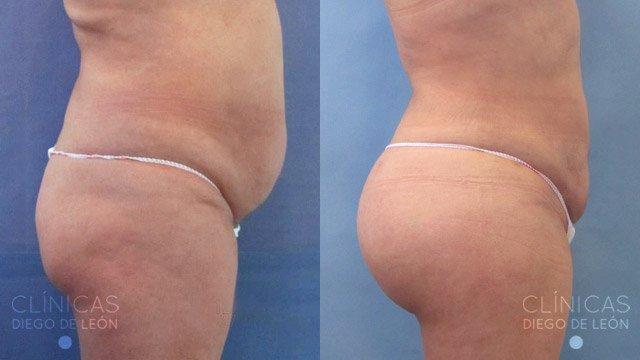 Aumento de gluteos con grasa corporal