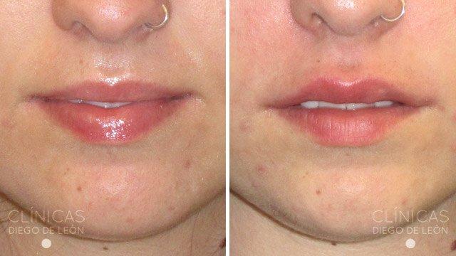 Aumento de labios fotos