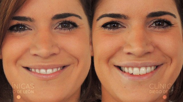 Aumento de labios Madrid