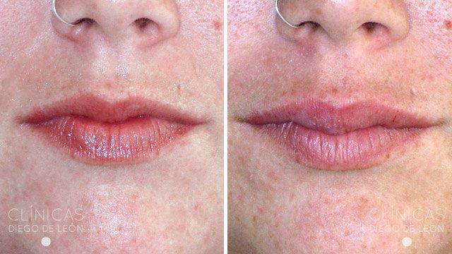 Aumento de labios sin cirugía