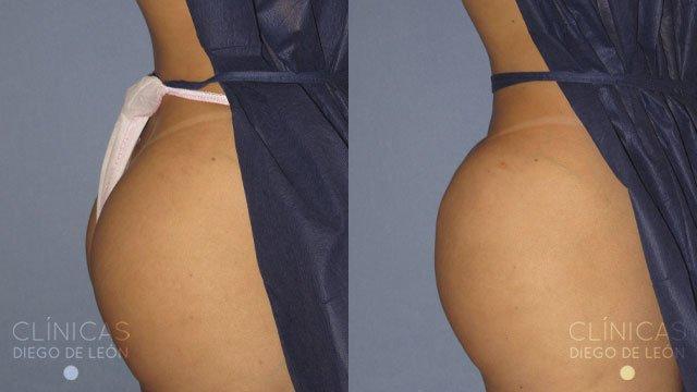 Aumento de glúteos antes y después