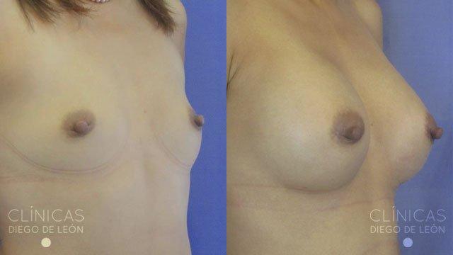 Aumento de pecho con implantes