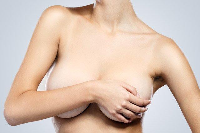 Mamoplastia de Aumento de Senos