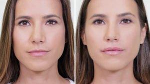 Aumento de labios con ácido hialurónico - resultados