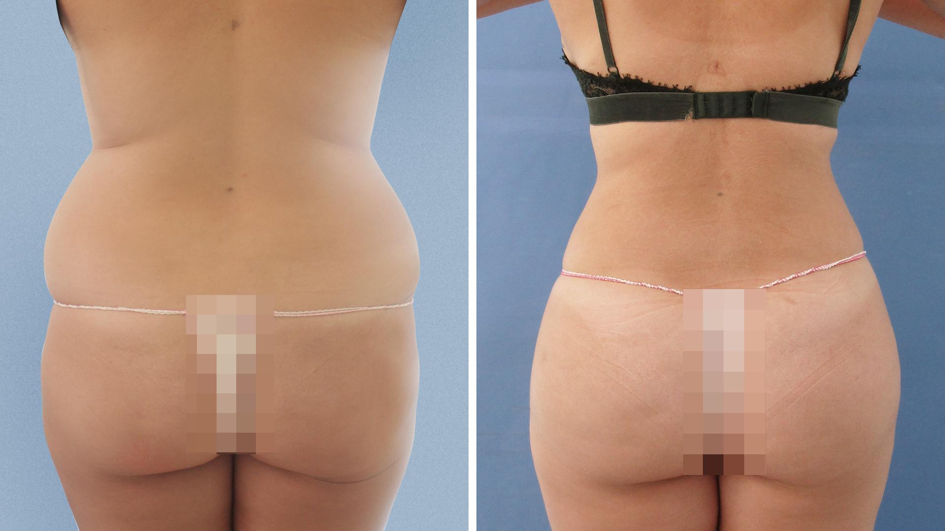 Marichu del Amo: antes y después de lipoescultura