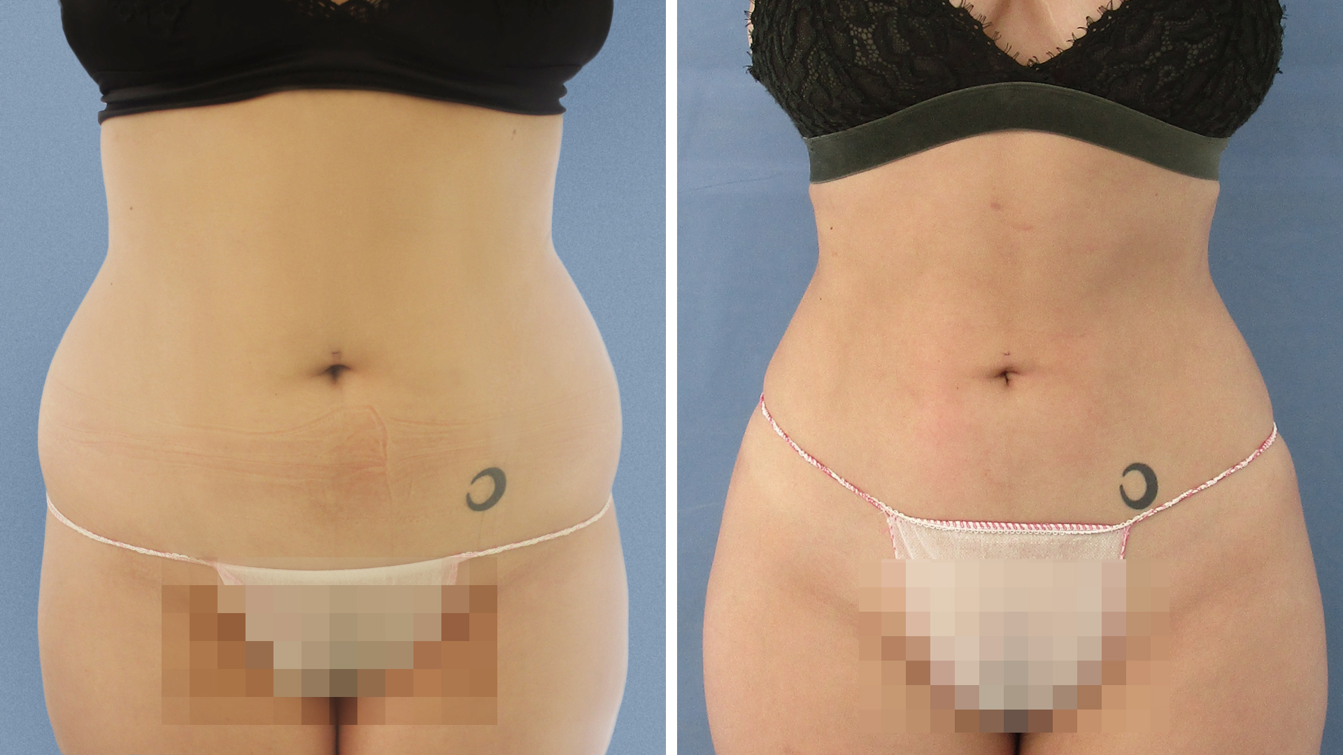 Liposuction de caderas antes y despues de adelgazar