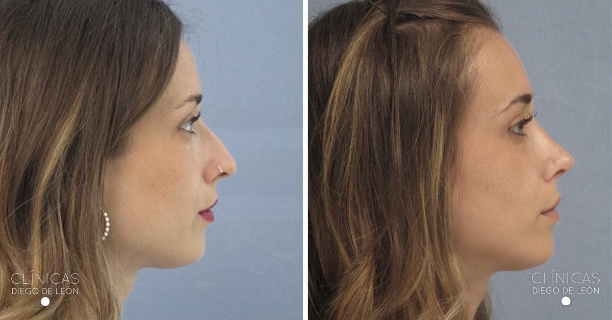 Antes y después rinoplastia - Clínicas Diego de León