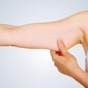 Braquioplastia - Lifting de brazos