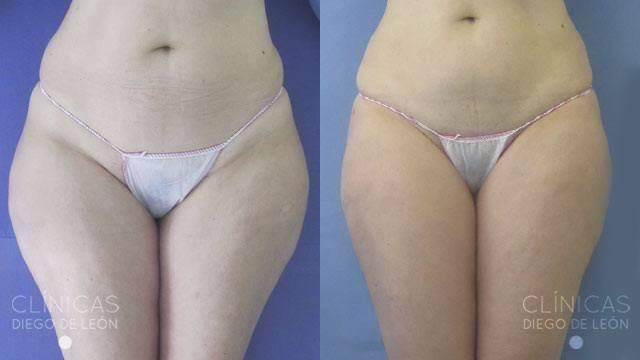 Cirugía de liposucción antes y después
