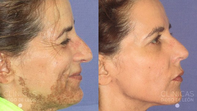 Eliminar manchas antes y después