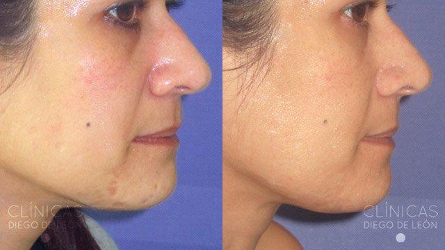 Orli acidi da posti sulla faccia
