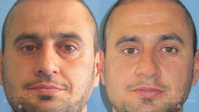 Eliminar ojeras antes y después