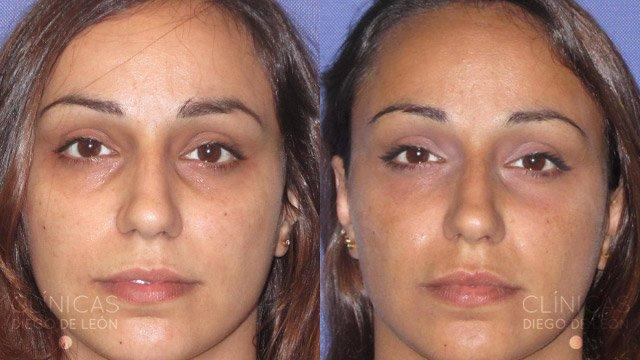 Eliminar ojeras con ácido hialurónico