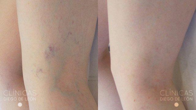 Eliminar varices antes y después