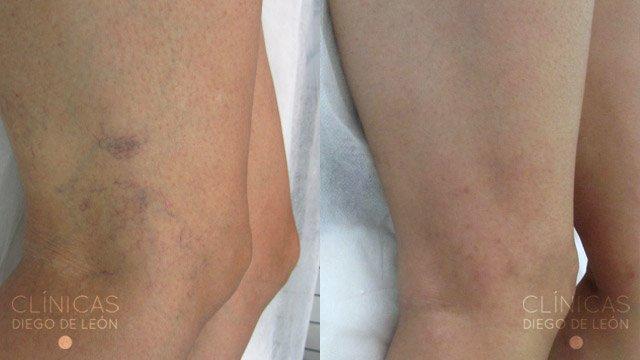 Láser vascular piernas