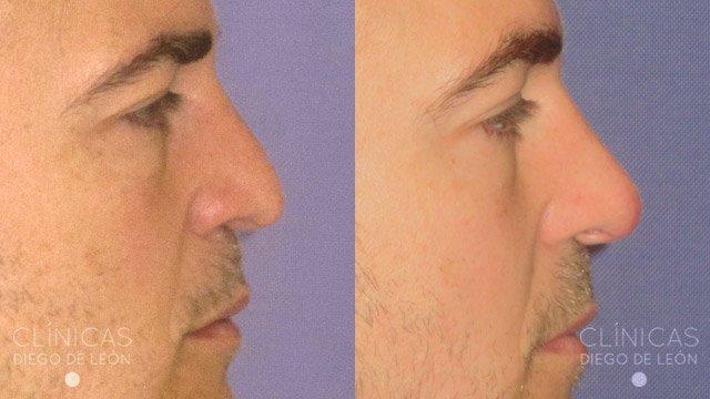 Levantar punta nariz antes y después