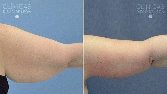 Lifting de brazos antes y después
