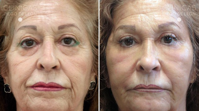 lipofilling facial antes y después