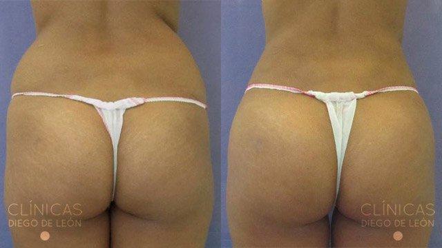 Lipotransferencia a gluteo antes y después