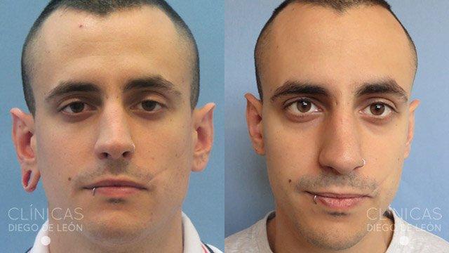 Lobuloplastia antes y después