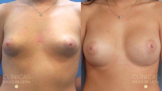 Mamas tubulares antes y después