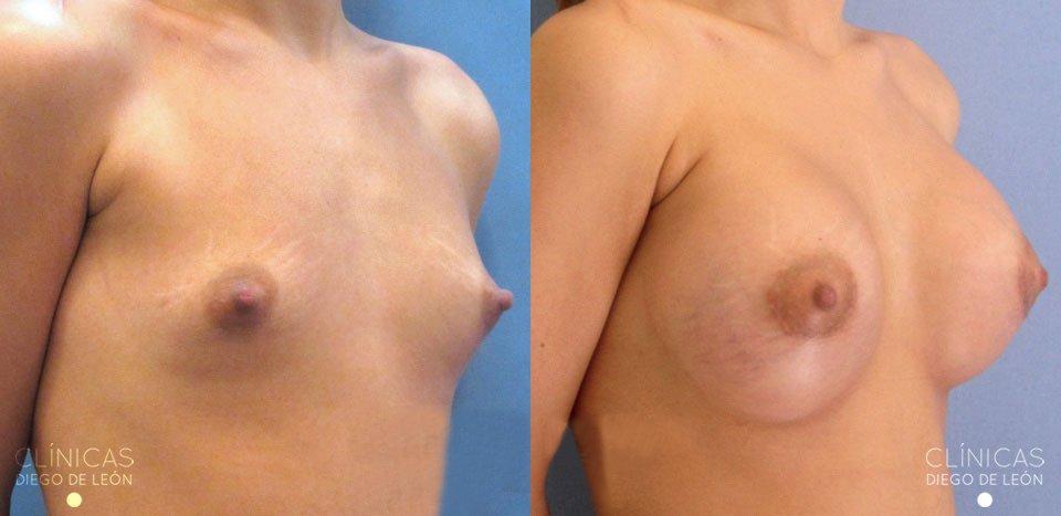 Resultados Mamoplastia de aumento | Clínicas Diego de León