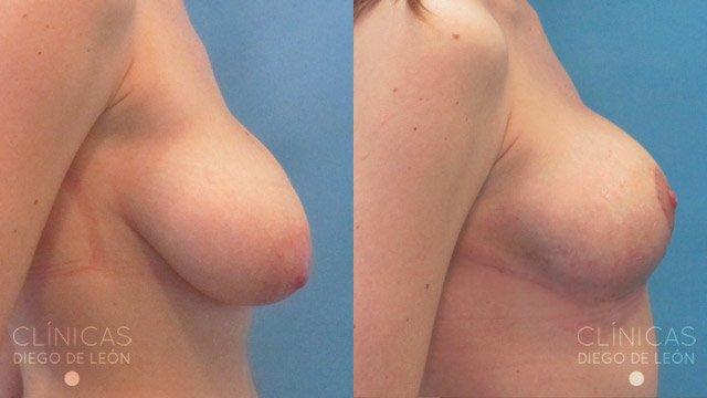 Mamoplastia de Reducción antes y después