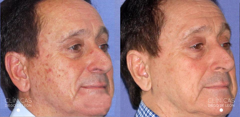 Resultados eliminar manchas de la cara | Clínicas Diego de León