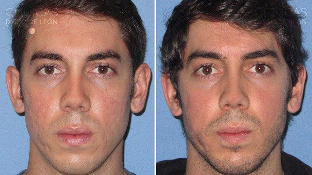 Marcas de acné antes y después