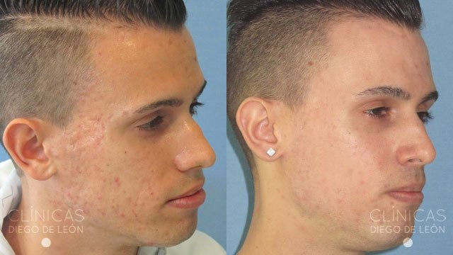 El acné de la causa del surgimiento
