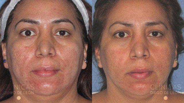 Marcas de acné laser