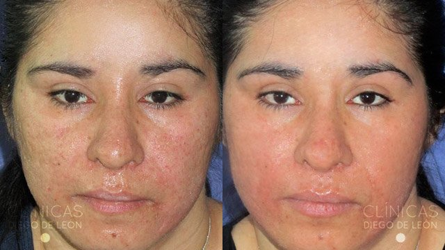 Marcas de acné profundas