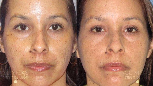 Marcas de acné tratamiento