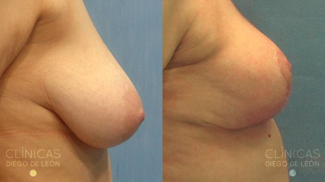 Diferente implanty a un pecho