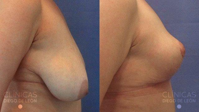 Mastopexia sin prótesis