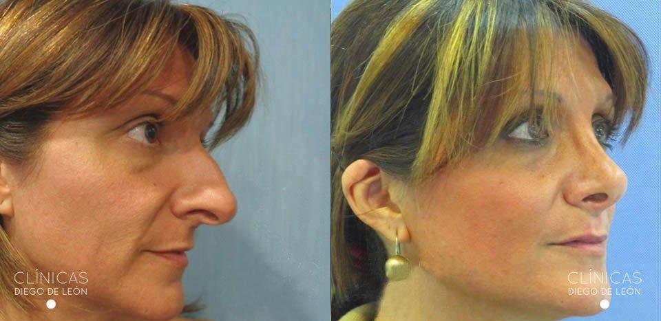 Testimonio cirugía de nariz | Clínicas Diego de León