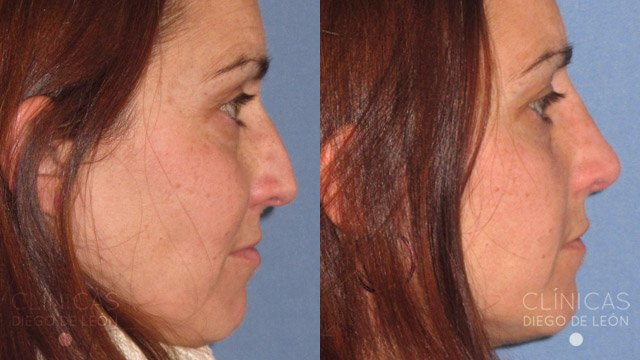 Operación de nariz sin cirugía