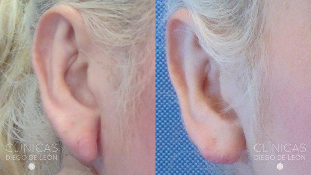 Orejas rasgadas antes y después