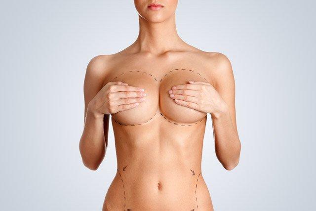 Lipotransferencia en senos