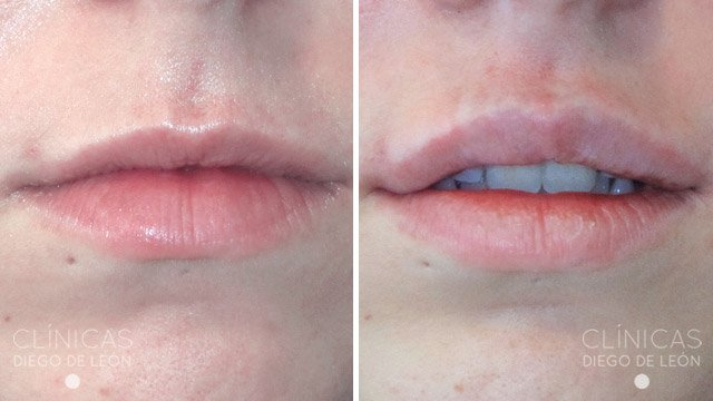 Relleno de labio superior