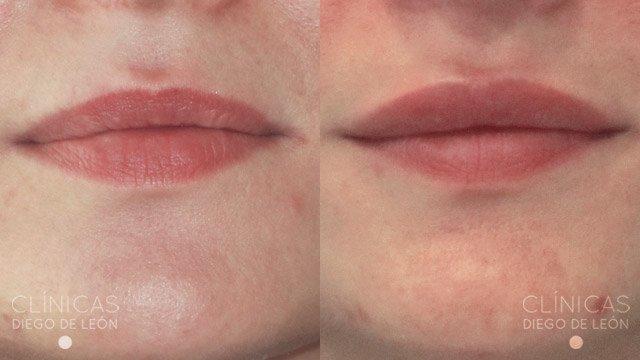 Relleno de labios antes y después