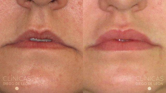 Relleno de labios precio
