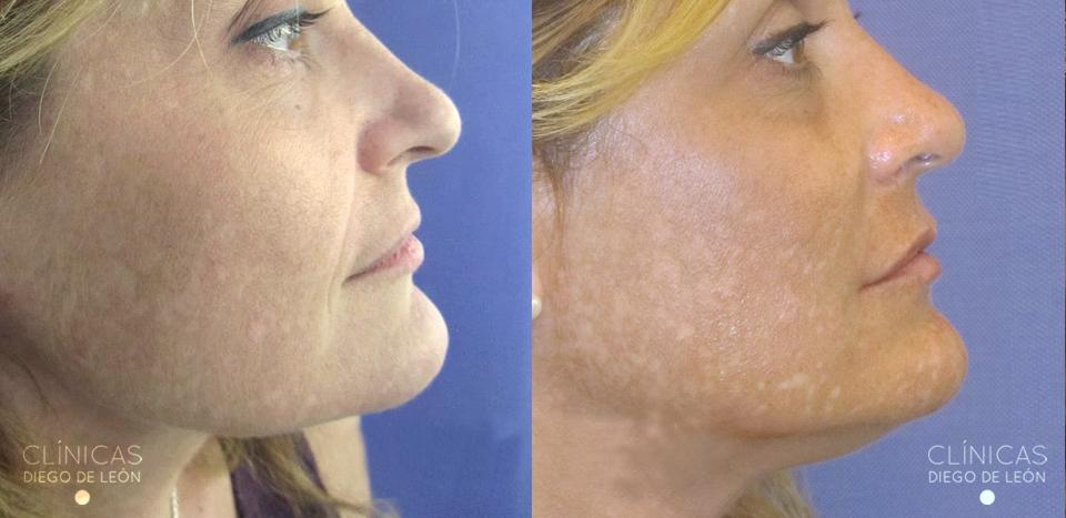 Antes y después rellenos faciales | Clínicas Diego de León